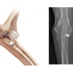 Figure 3: Elbow with Implants - (left) Prosthetic Elbow (right) X-Ray Post-Op